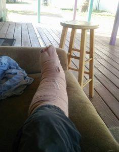 怪我をした脚です。