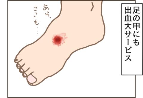 足の甲にも出血大サービス