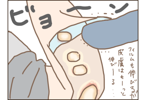 老人の伸びる皮膚