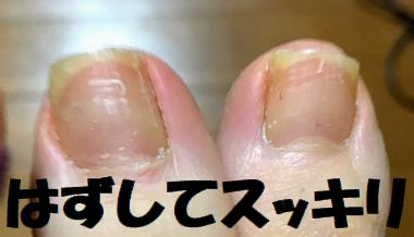 まきづめリフトを外して爪を切りスッキリした足の爪