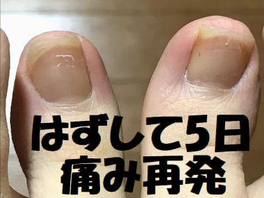 巻き爪の再発