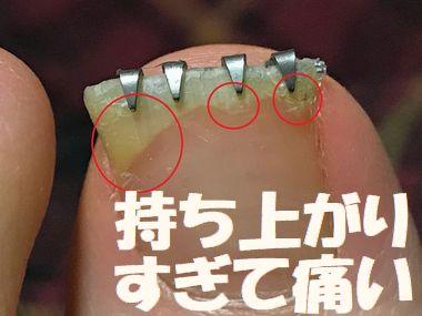 爪が剥がれすぎて深爪が進行中