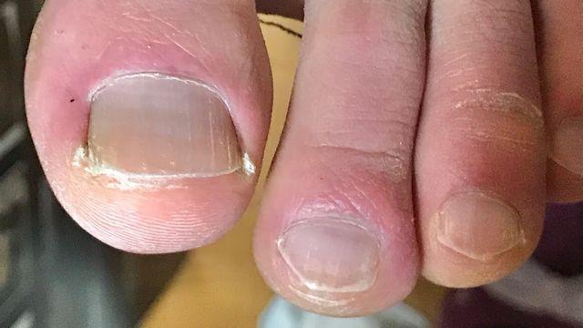 爪水虫が治った状態